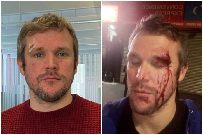 Birmingham: Man attacked with wine bottle for 'holding another man's hand'
